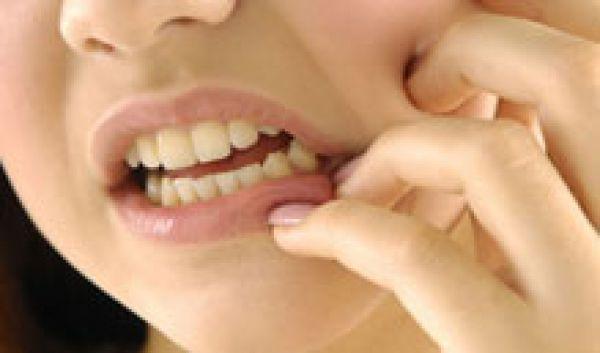 Giảm đau do mọc răng 'khôn'