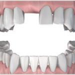 Phục hình răng sứ cố định
