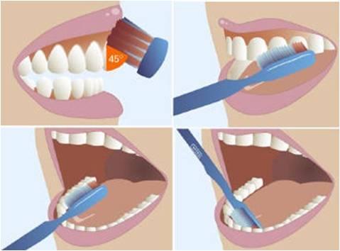 Chải răng theo phương pháp của nha khoa