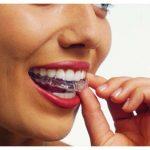 Chỉnh nha – Niềng răng
