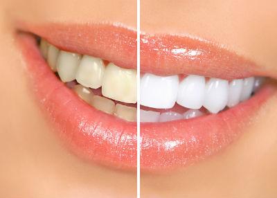 9 cách làm trắng răng tự nhiên tại nhà đơn giản